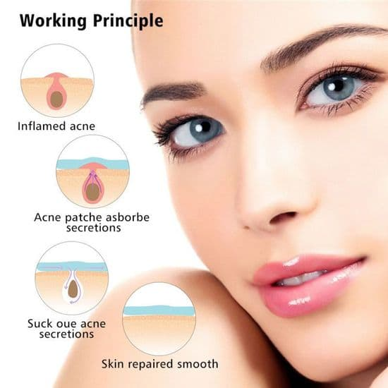 Acne & Blemish Treatment